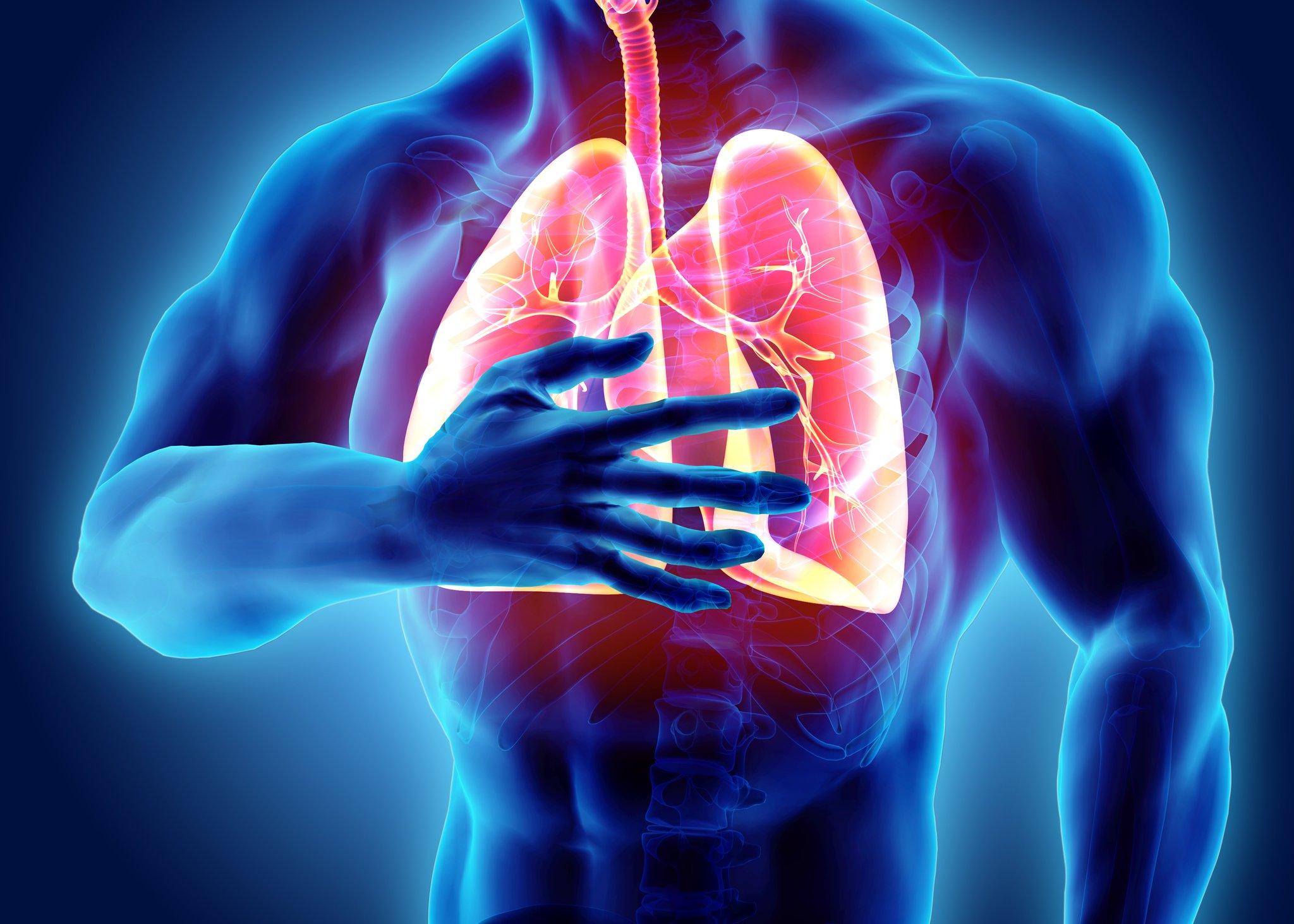 Respiratory Failure
