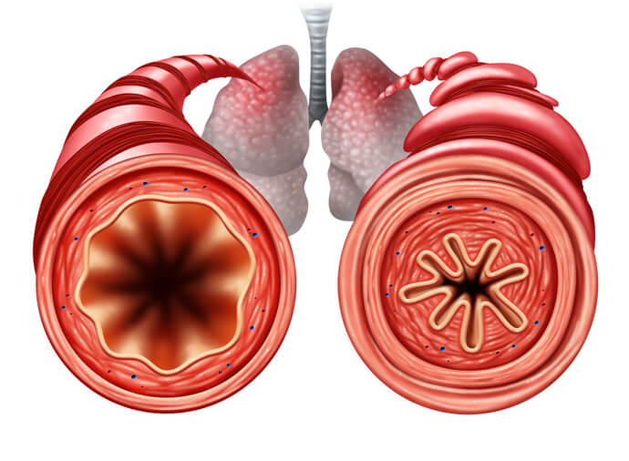 What Are the Most Common Causes of Upper Airway Obstruction