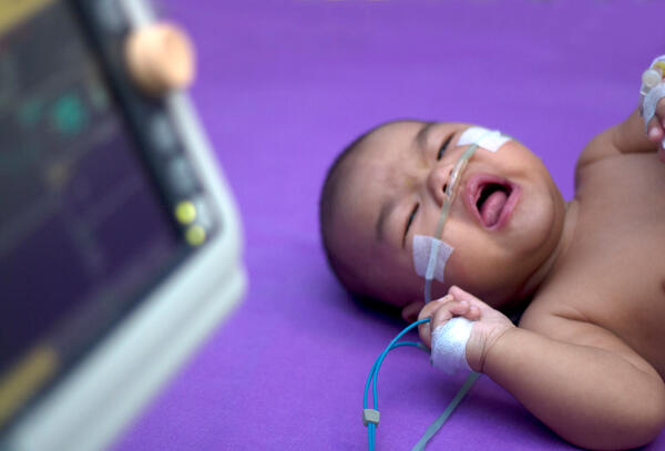 What Are the Signs of Respiratory Distress in Newborns